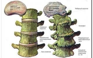 Остеофиты грудного отдела позвоночника симптомы и лечение