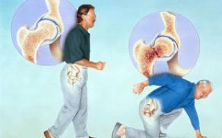 Остеопороз позвоночника симптомы и лечение у мужчин