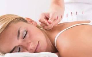 Иглоукалывание при болях в шейном отделе позвоночника