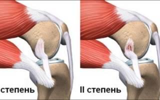 Нога не сгибается в колене больно