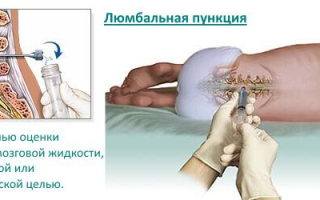 Пункция спинного мозга для чего берут