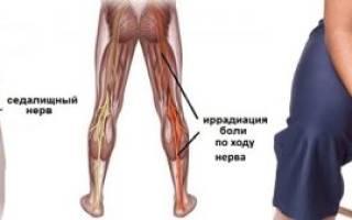Болит нерв в колене что делать