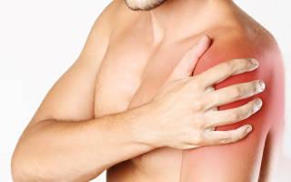 Боль в левом плече — причины появления симптома, способы лечения