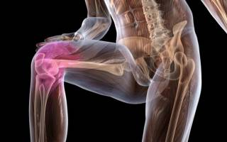 Остеохондроз колена лечение в домашних условиях