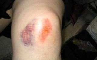 Сколько держится отек при ушибе колена