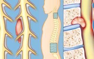 Может ли грыжа позвоночника перерасти в рак