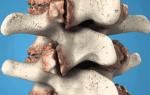 Остеофиты грудного отдела позвоночника лечение народными средствами