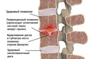 Упражнения для спины при грыже шморля позвоночника