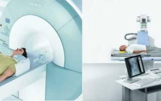 Можно ли делать мрт после рентгена позвоночника
