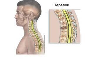 Компрессионный перелом позвоночника грудного отдела