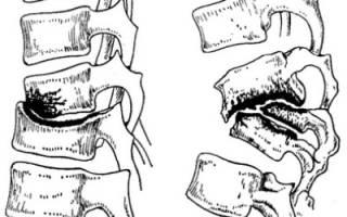 Туберкулез позвоночника операция и последствия