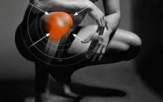 Болит кость под коленом при ходьбе