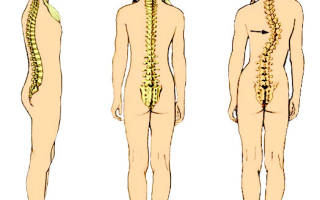 Сколиоз грудного отдела позвоночника: степени, лечение, упражнения, фото