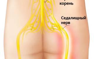 Простые упражнения для позвоночника при ущемлении нервов