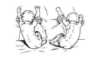 Врожденная деформация позвоночника у детей