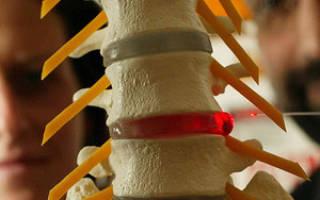 Современные методы лечения грыжи шейного отдела позвоночника