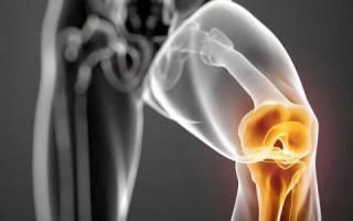 Скрип и боль в колене лечение