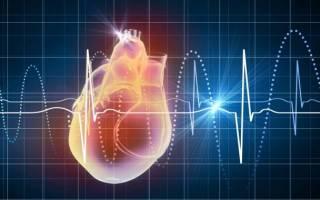 Экстрасистолия при остеохондрозе грудного отдела: связь, причины, симптомы и лечение. Гимнастика и народные рецепты