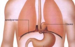 Грыжа пищеводного отверстия диафрагмы лечение после операции