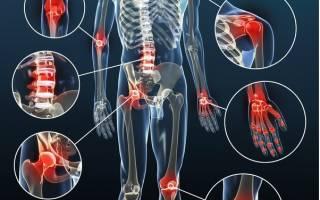 Противовоспалительные мази при боли в колене