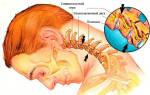 Хондроз шейного отдела позвоночника симптомы лечение фото