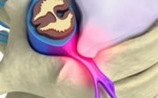 Протрузии шейного отдела позвоночника причины и лечение