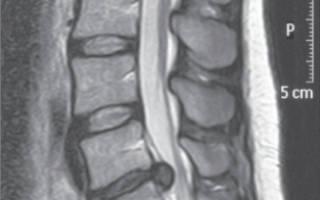 Ущемление грыжи шейного отдела позвоночника