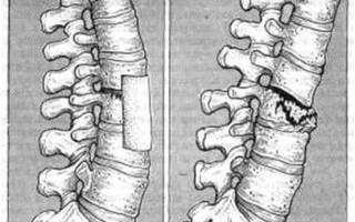 Лекарства при компрессионном переломе позвоночника