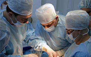 Бедренная грыжа у женщин: симптомы, лечение, операция, как снять воспаление