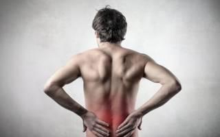 Межпозвоночная грыжа пояснично крестцового отдела как снять боль