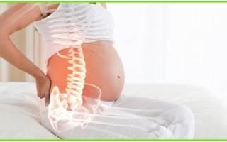 Межпозвоночная грыжа шейного отдела позвоночника при беременности