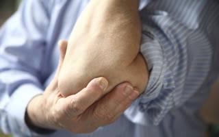 Боль в суставах локтей и коленей