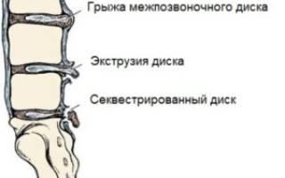 Как вылечить секвестрированную грыжу позвоночника без операции