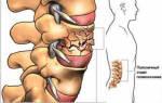 Корсет для спины при переломе позвоночника фото