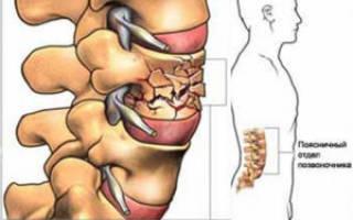 Когда снимать корсет после компрессионного перелома позвоночника