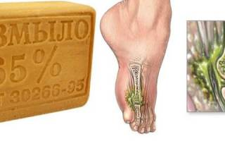 Остеомиелит позвоночника лечение народными средствами
