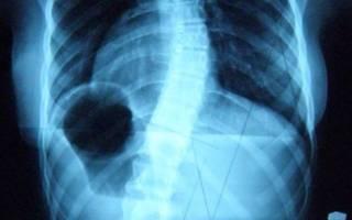 Как исправить сколиоз грудного отдела