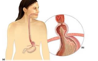 Грыжа пищевода симптомы и лечение диета лекарства