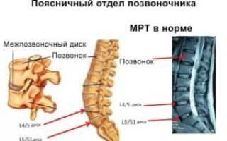 Чем снять боль при межпозвоночной грыже поясничного отдела