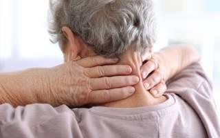 Остеохондроз Шейного отдела позвоночника — симптомы и лечение