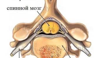Гемангиома позвоночника лечение в москве в больнице