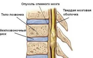 Лечение менингиомы позвоночника народными средствами