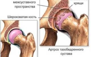 Остеохондроз тазобедренного отдела позвоночника симптомы и лечение
