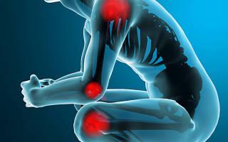 Обезболивающие препараты при болях в спине, суставах и мышцах: таблетки, лекарства