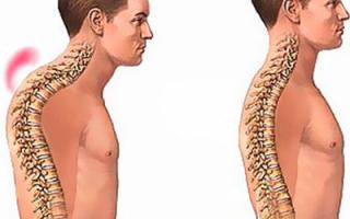 Компрессионный перелом позвоночника грудного отдела со смещением