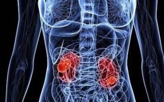 Прогнозы медиков после удаления рака почки