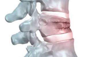 Сросшийся компрессионный перелом позвоночника лечение
