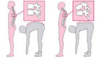 Эффективные упражнения при кифозе грудного отдела позвоночника