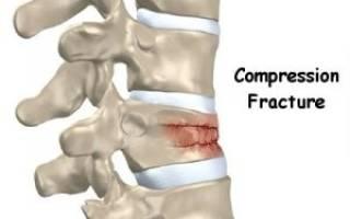 Компрессионный перелом позвоночника лечение и реабилитация время