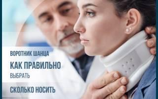 Воротник шанца при шейном остеохондрозе Лечение шейного остеохондроза